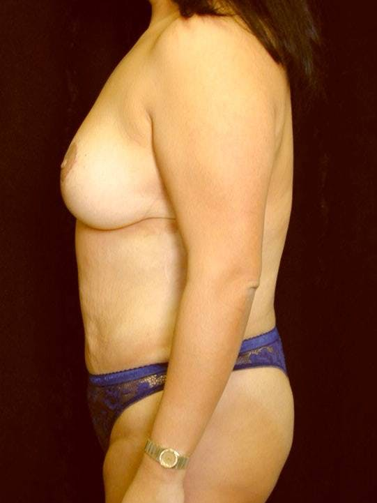 Mommy Makeover Gallery - Patient 39226149 - Image 6