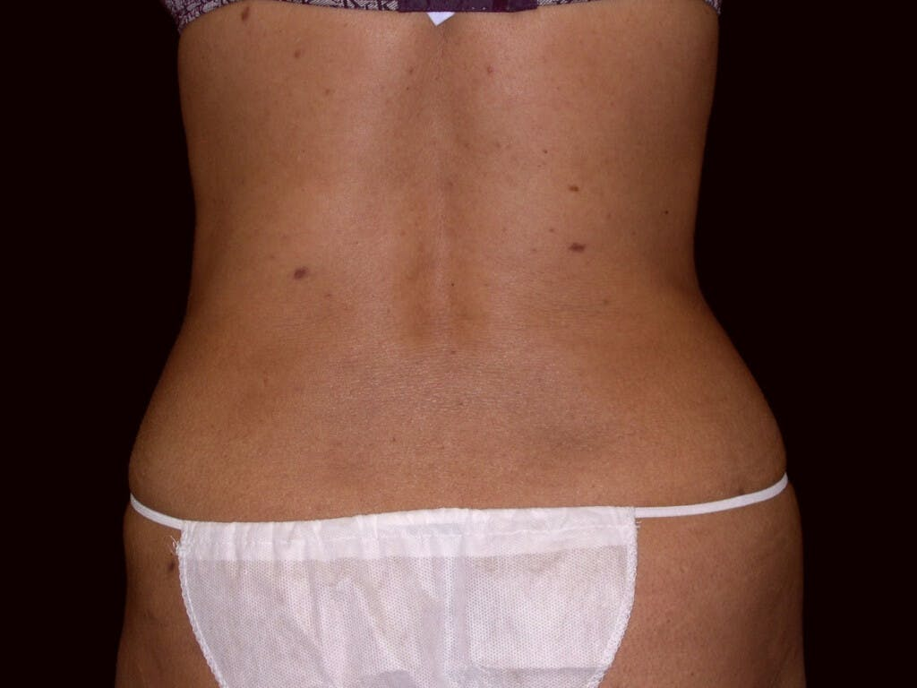 Liposuction Gallery - Patient 39226150 - Image 2
