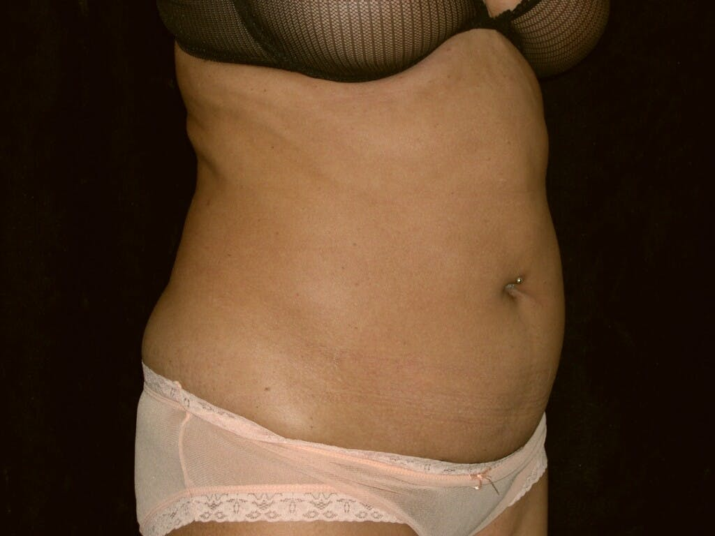 Tummy Tuck Gallery - Patient 39226153 - Image 3