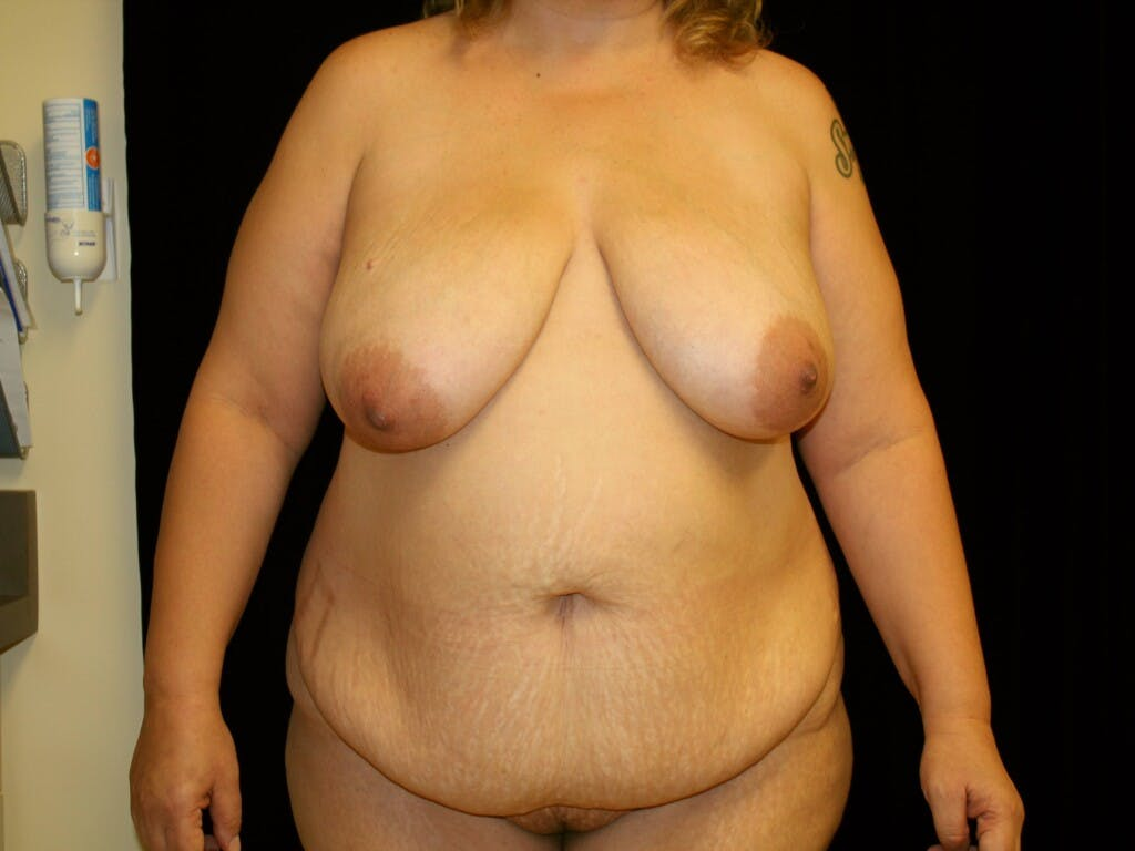 Mommy Makeover Gallery - Patient 39226162 - Image 1