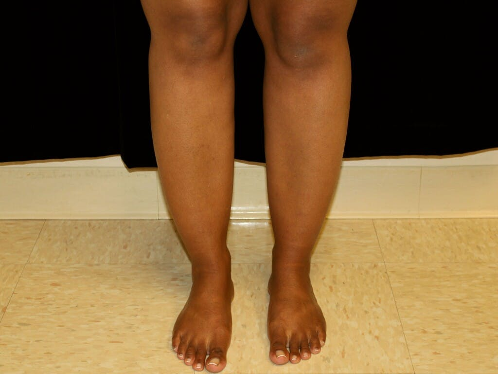Liposuction Gallery - Patient 39226152 - Image 1