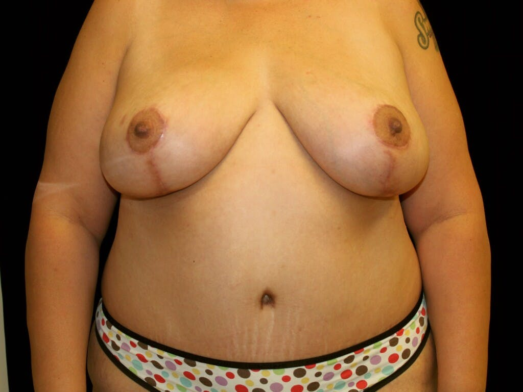 Mommy Makeover Gallery - Patient 39226162 - Image 2