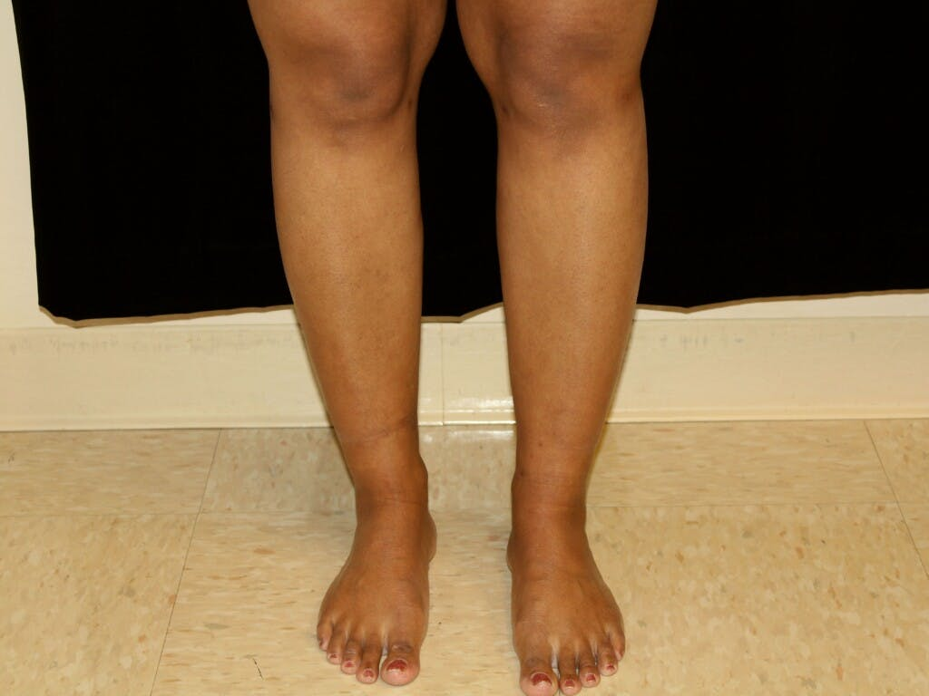 Liposuction Gallery - Patient 39226152 - Image 2