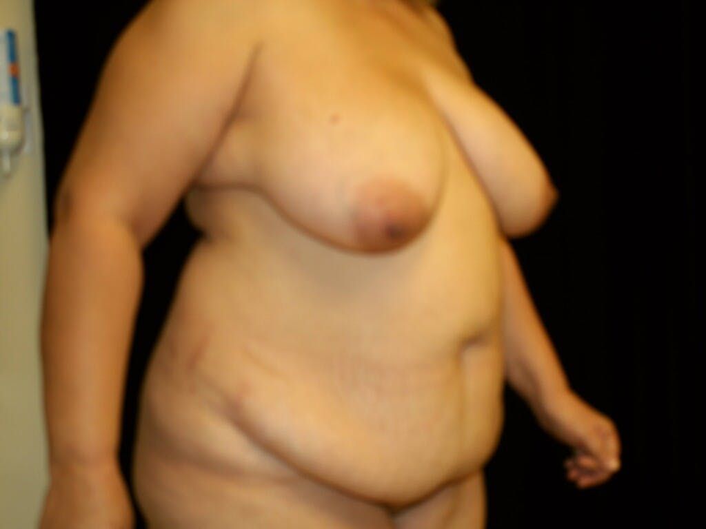 Mommy Makeover Gallery - Patient 39226162 - Image 3