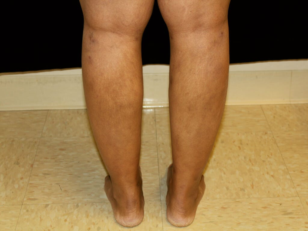 Liposuction Gallery - Patient 39226152 - Image 4