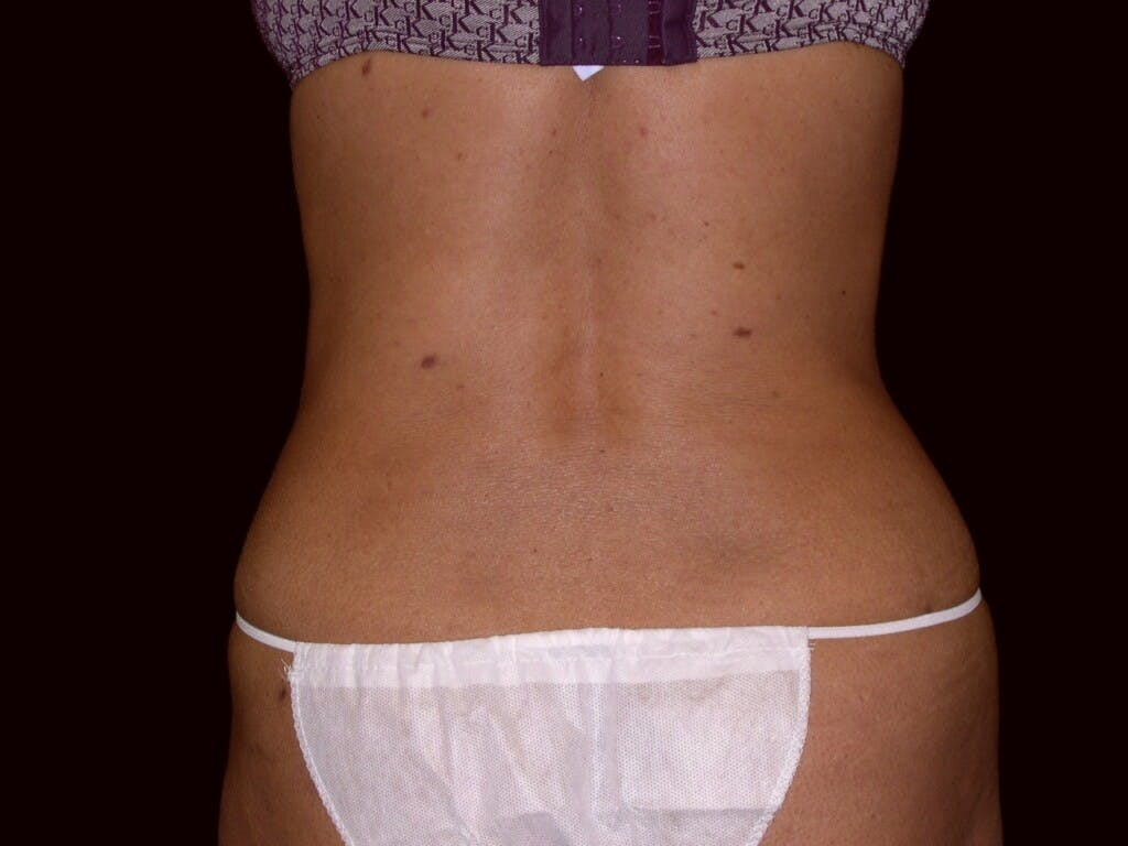 Tummy Tuck Gallery - Patient 39226153 - Image 8
