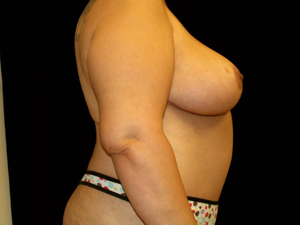 Mommy Makeover Gallery - Patient 39226162 - Image 6
