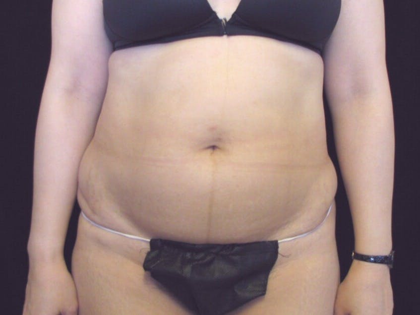 Tummy Tuck Gallery - Patient 39226165 - Image 1