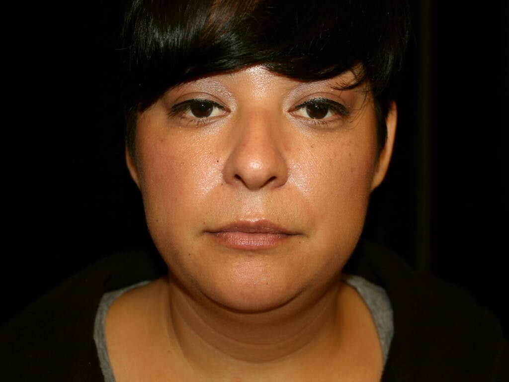 Liposuction Gallery - Patient 39226164 - Image 1