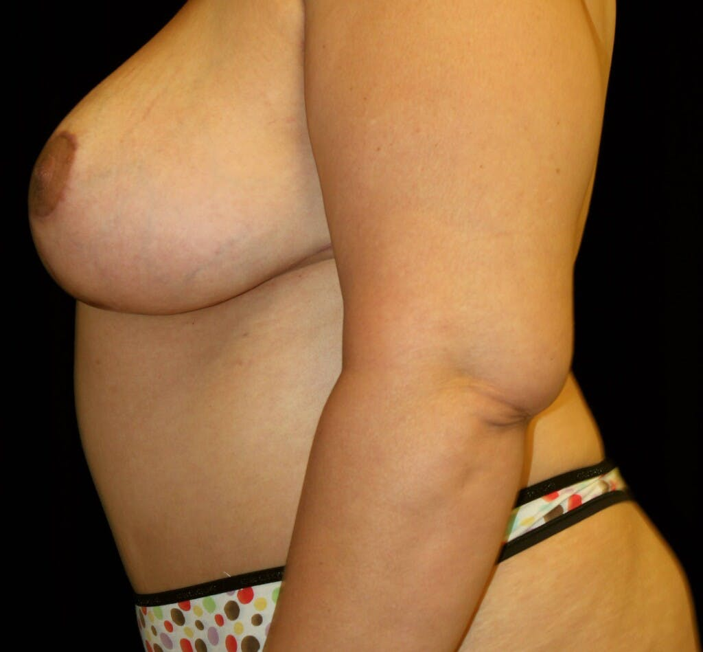 Mommy Makeover Gallery - Patient 39226162 - Image 10