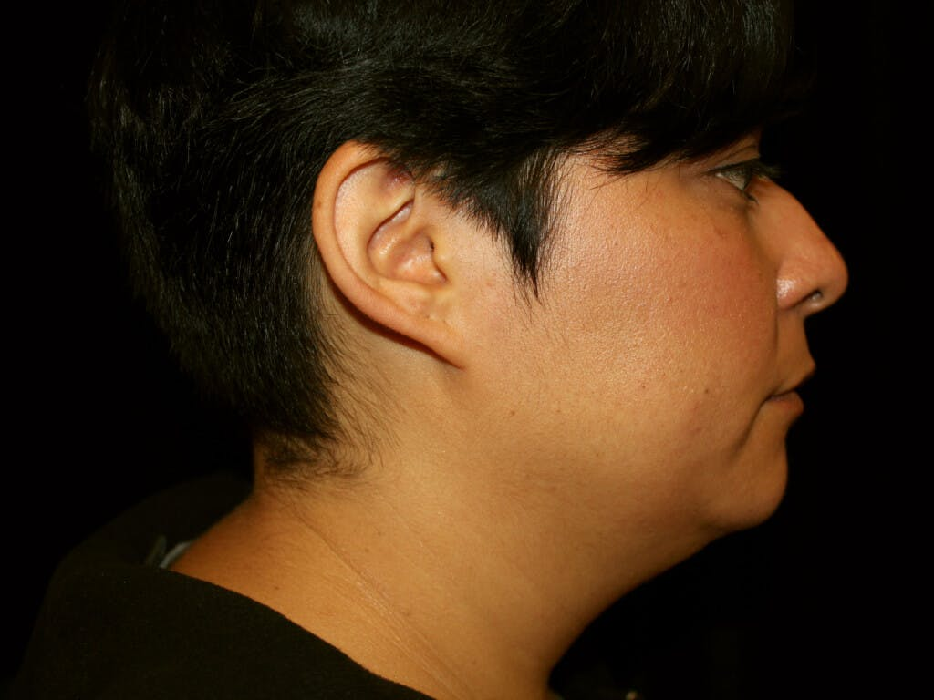 Liposuction Gallery - Patient 39226164 - Image 3