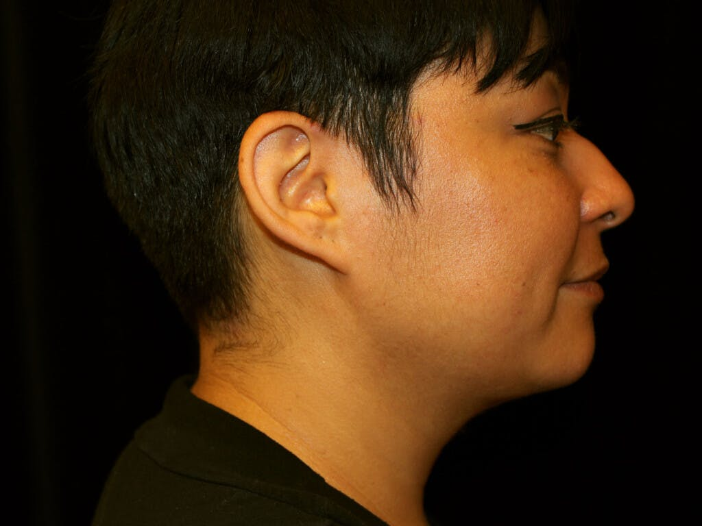 Liposuction Gallery - Patient 39226164 - Image 4