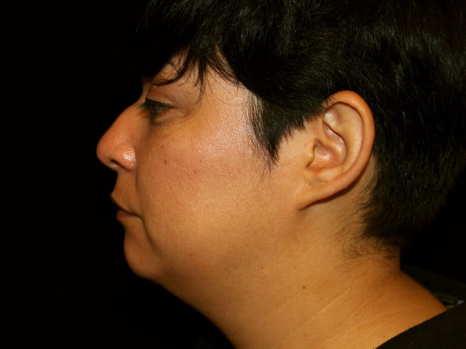 Liposuction Gallery - Patient 39226164 - Image 5