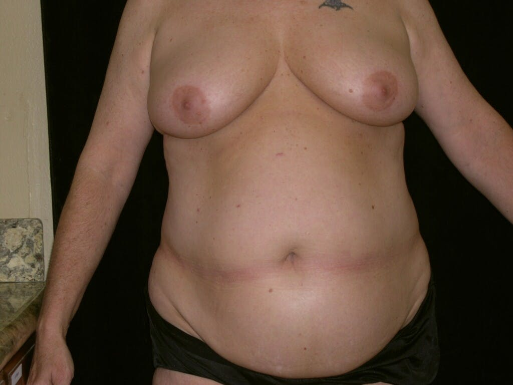 Mommy Makeover Gallery - Patient 39226167 - Image 1