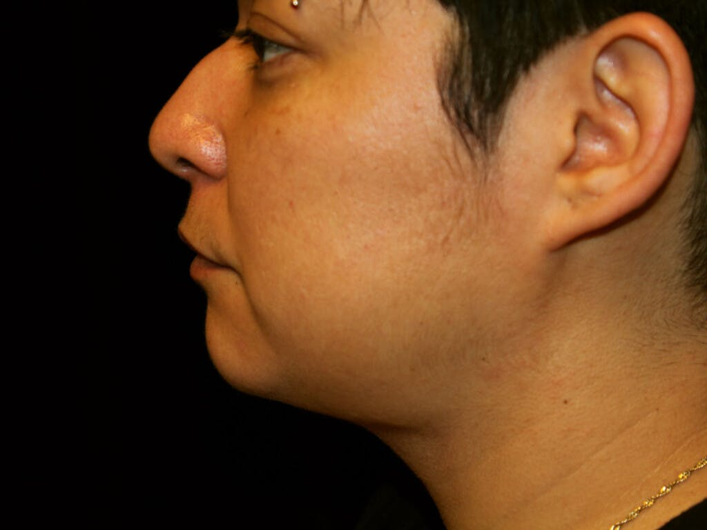 Liposuction Gallery - Patient 39226164 - Image 6