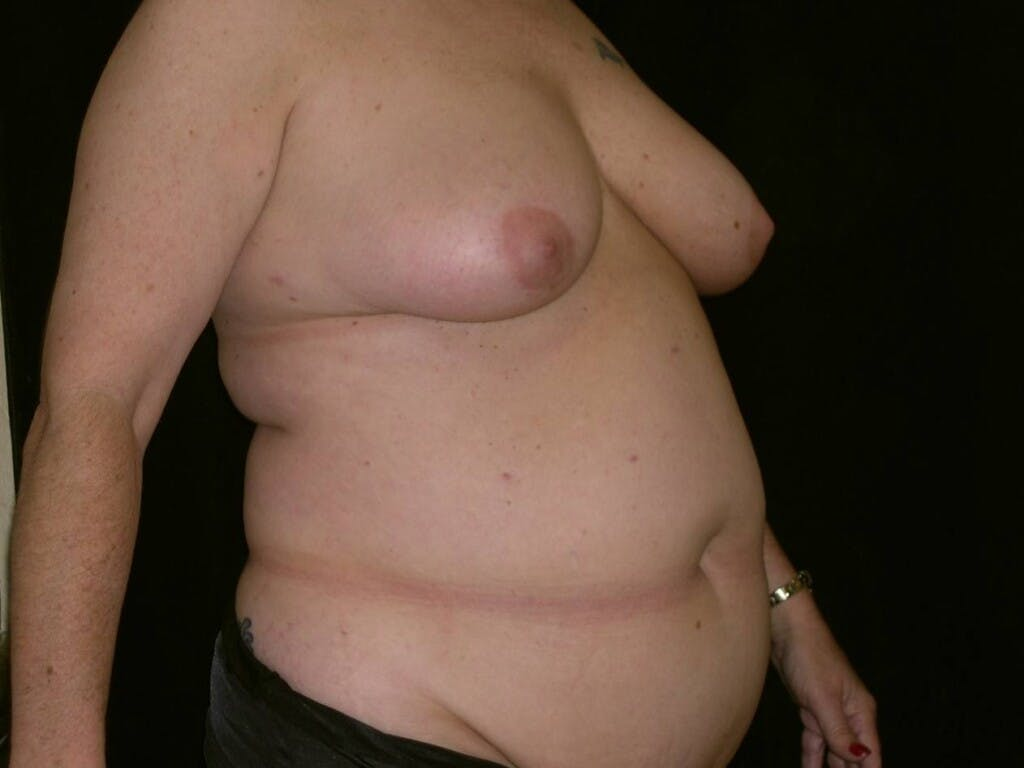 Mommy Makeover Gallery - Patient 39226167 - Image 3