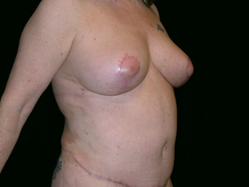 Mommy Makeover Gallery - Patient 39226167 - Image 4