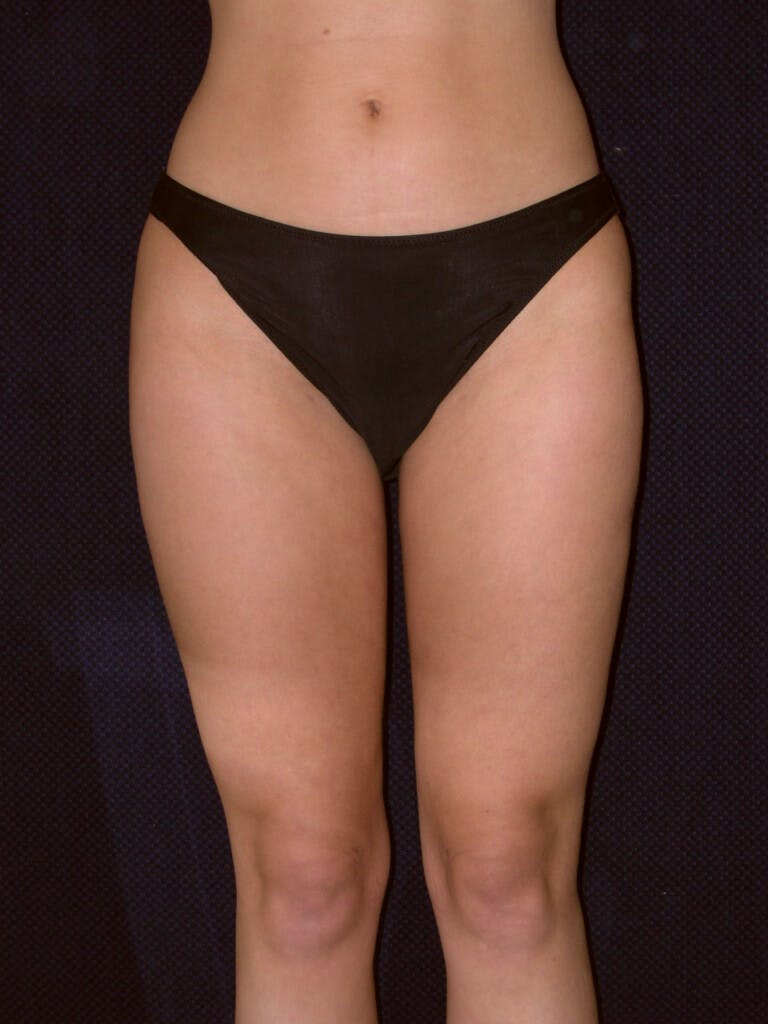 Liposuction Gallery - Patient 39226168 - Image 2
