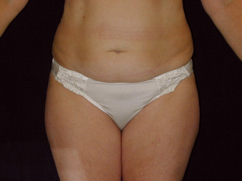 Tummy Tuck Gallery - Patient 39226172 - Image 1