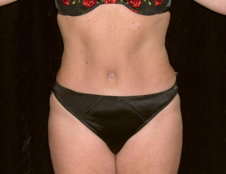 Tummy Tuck Gallery - Patient 39226172 - Image 2