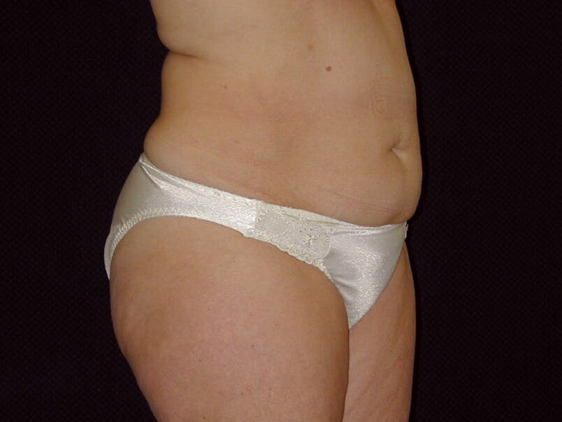 Tummy Tuck Gallery - Patient 39226172 - Image 3