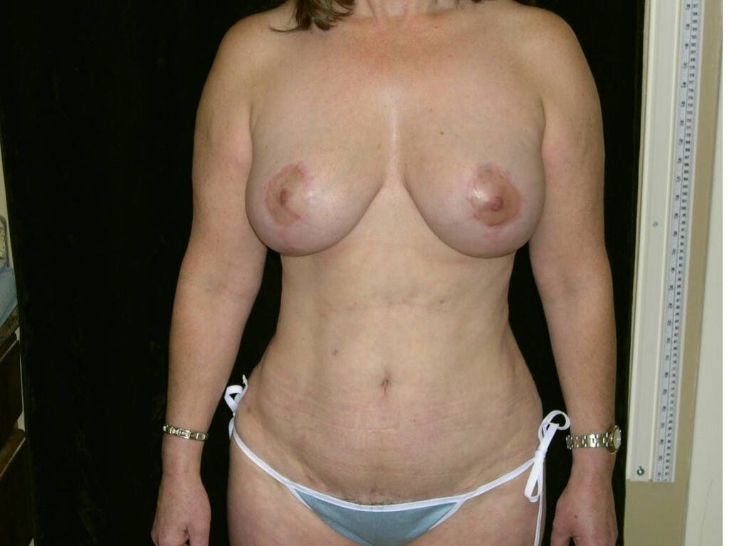 Mommy Makeover Gallery - Patient 39226175 - Image 2