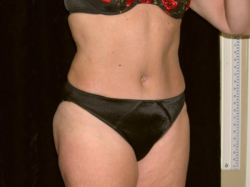 Tummy Tuck Gallery - Patient 39226172 - Image 4