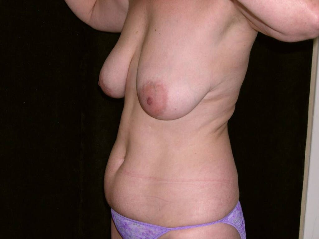 Mommy Makeover Gallery - Patient 39226175 - Image 3