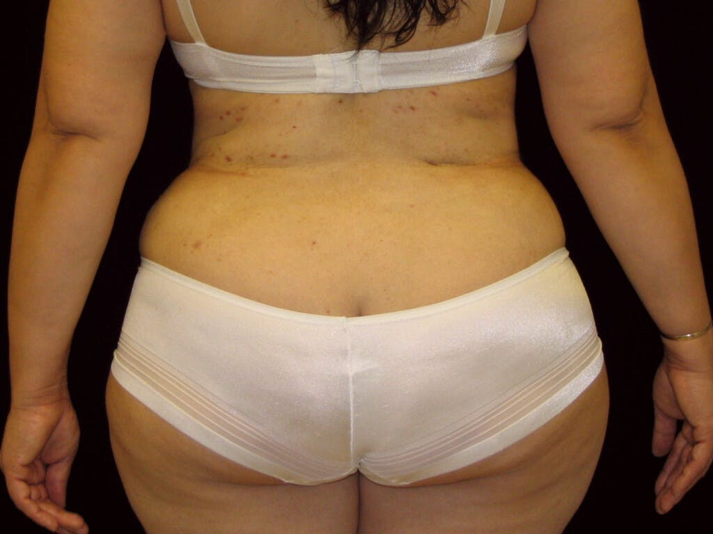 Liposuction Gallery - Patient 39226171 - Image 2