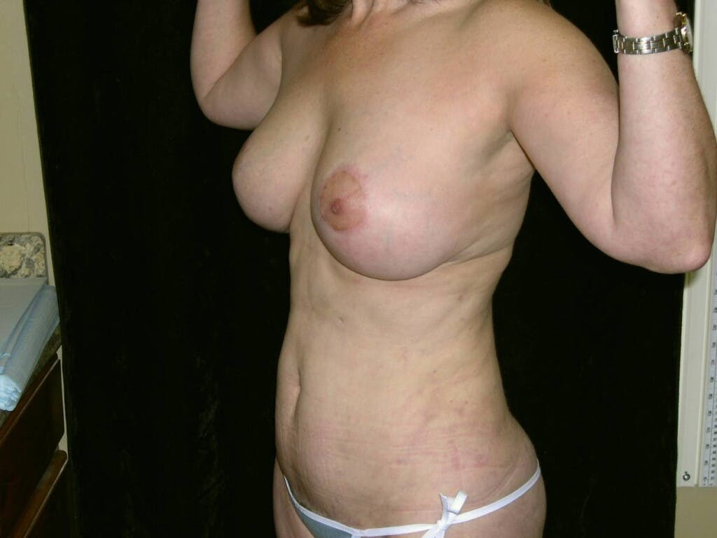 Mommy Makeover Gallery - Patient 39226175 - Image 4