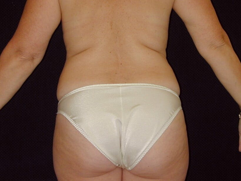 Tummy Tuck Gallery - Patient 39226172 - Image 7