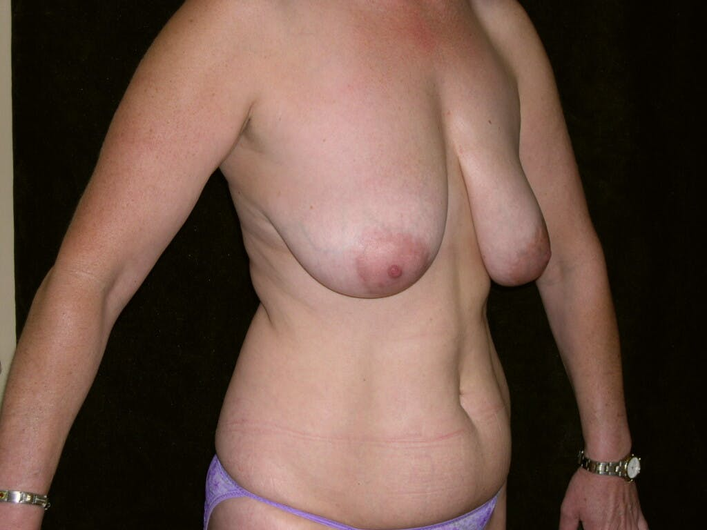 Mommy Makeover Gallery - Patient 39226175 - Image 5
