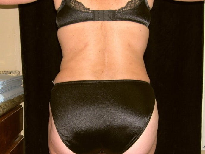 Tummy Tuck Gallery - Patient 39226172 - Image 8