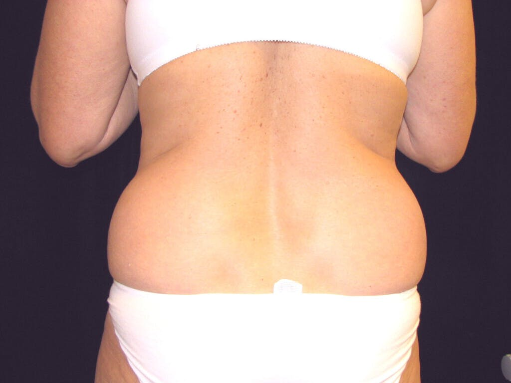 Liposuction Gallery - Patient 39226173 - Image 1