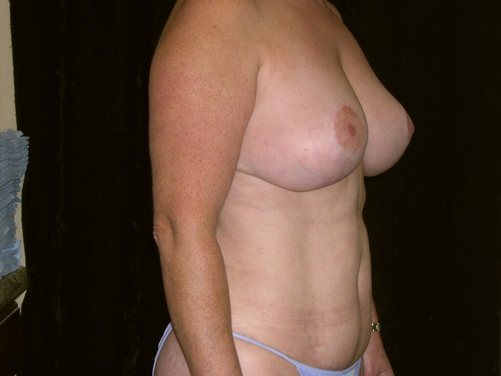 Mommy Makeover Gallery - Patient 39226175 - Image 8