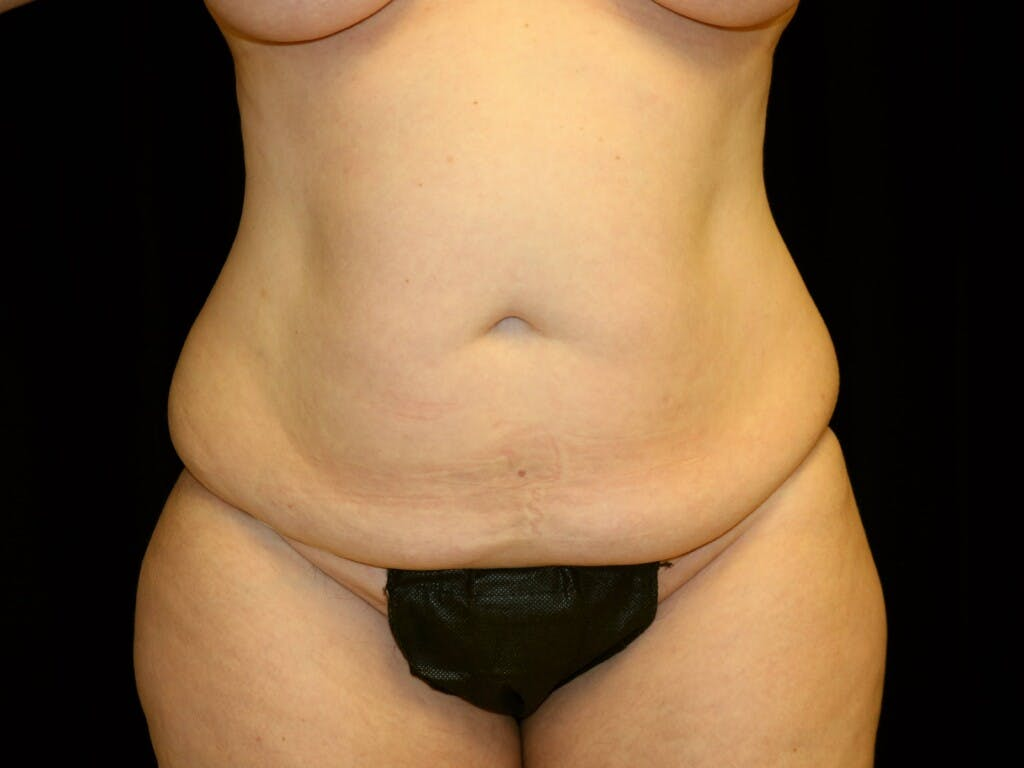Tummy Tuck Gallery - Patient 39226183 - Image 1