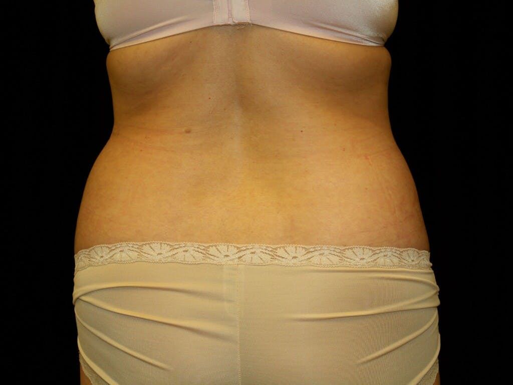 Liposuction Gallery - Patient 39226177 - Image 1