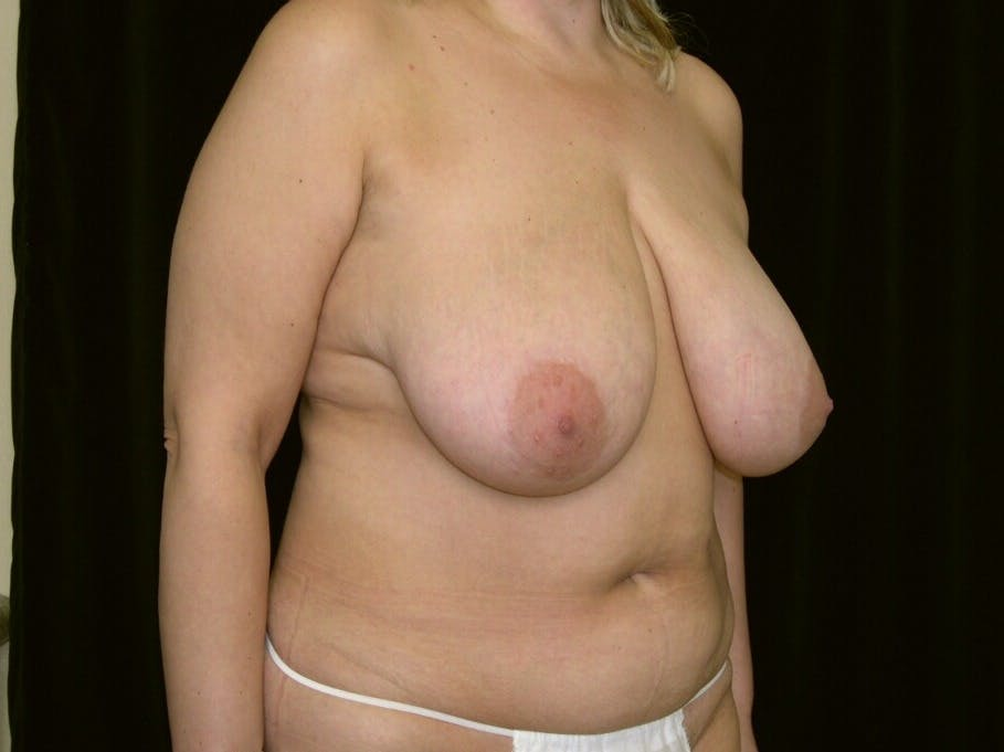 Mommy Makeover Gallery - Patient 39226185 - Image 1