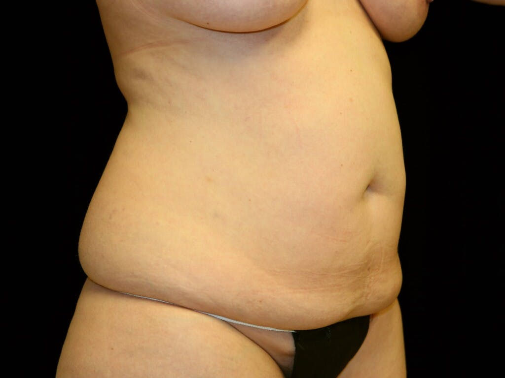 Tummy Tuck Gallery - Patient 39226183 - Image 3