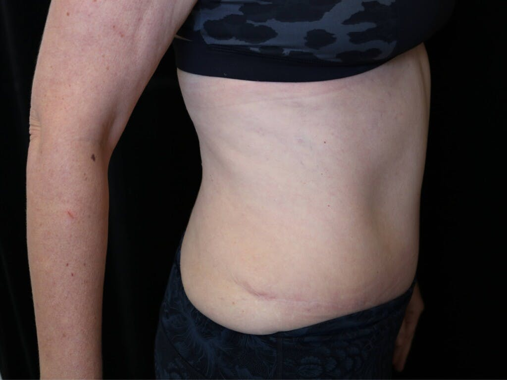 Tummy Tuck Gallery - Patient 39226183 - Image 4