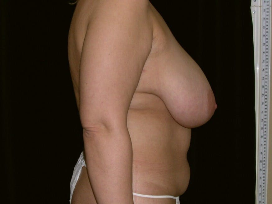 Mommy Makeover Gallery - Patient 39226185 - Image 3