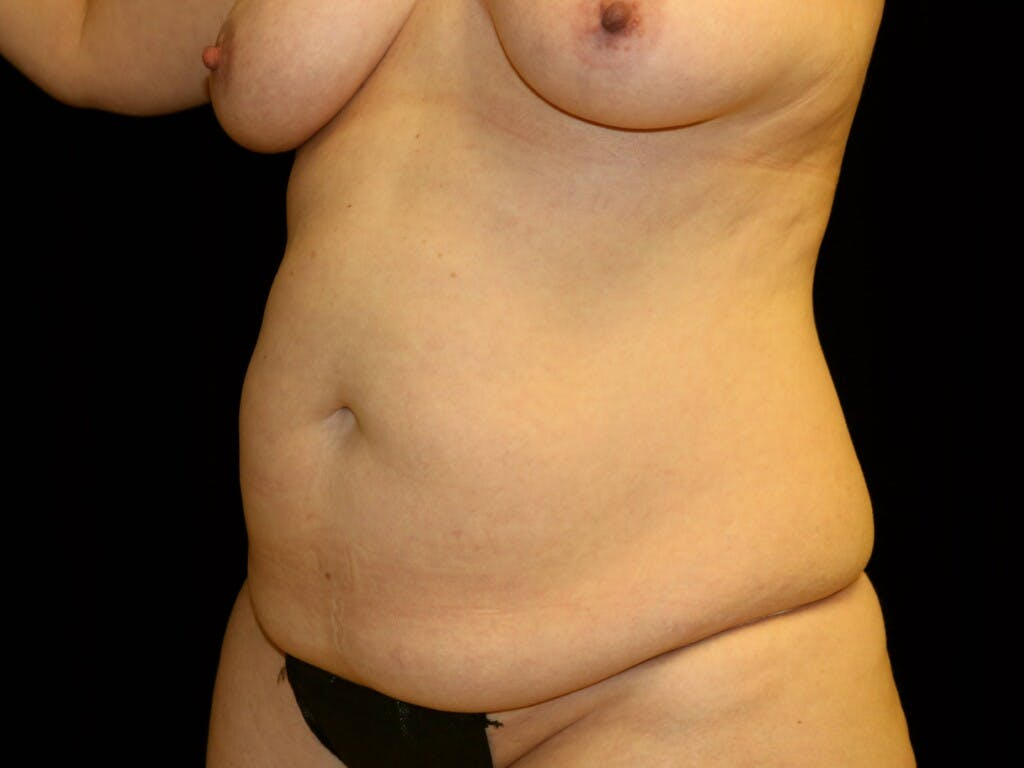 Tummy Tuck Gallery - Patient 39226183 - Image 5