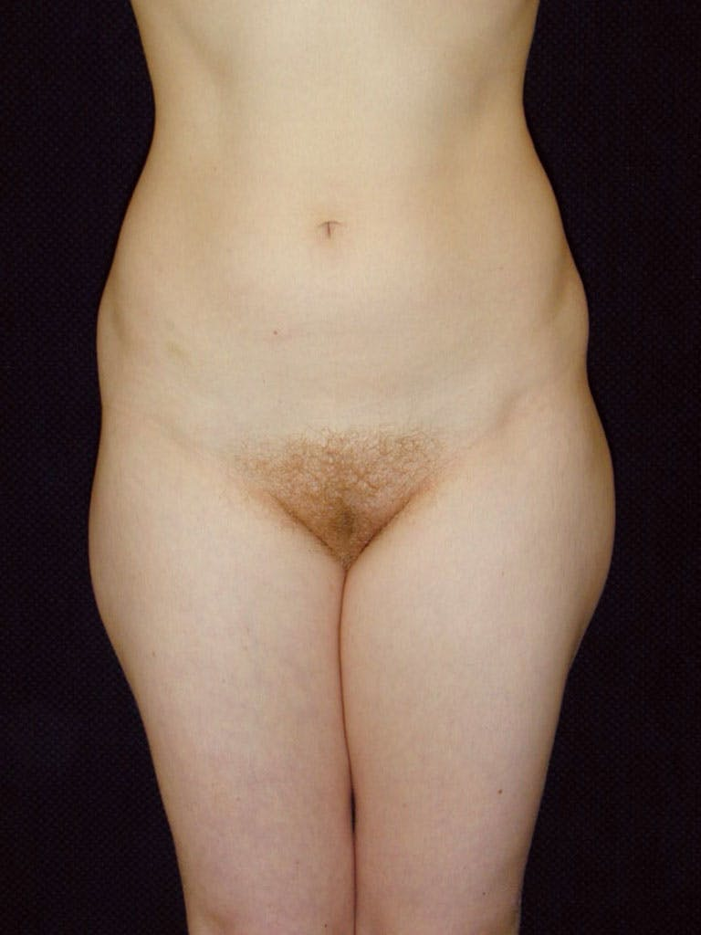 Liposuction Gallery - Patient 39226184 - Image 1
