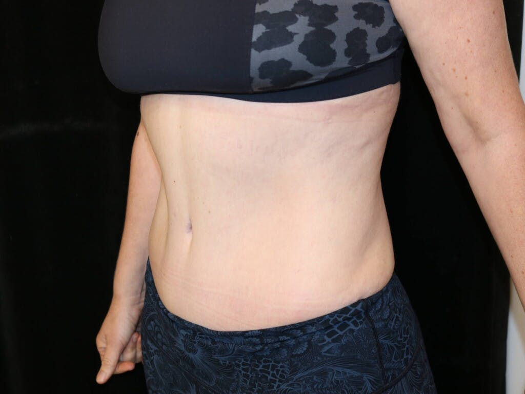 Tummy Tuck Gallery - Patient 39226183 - Image 6