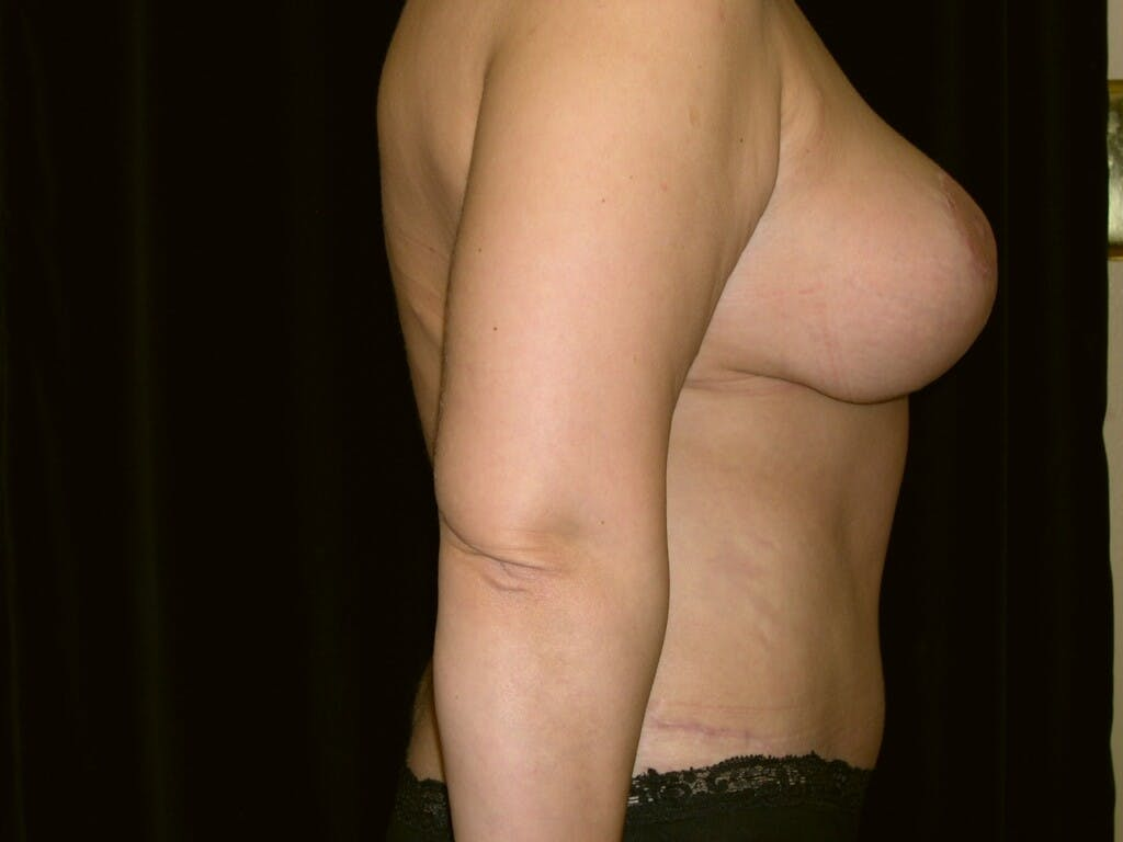 Mommy Makeover Gallery - Patient 39226185 - Image 4