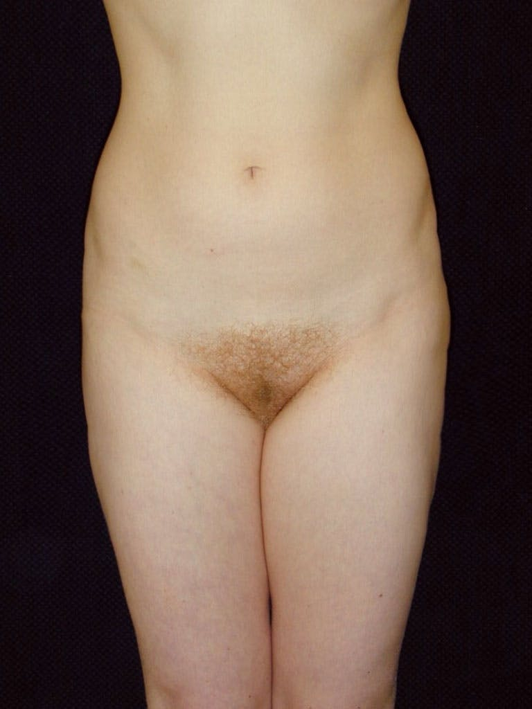 Liposuction Gallery - Patient 39226184 - Image 2