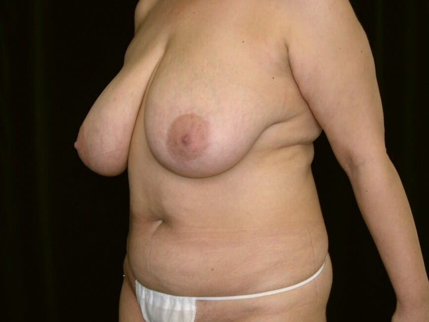 Mommy Makeover Gallery - Patient 39226185 - Image 5