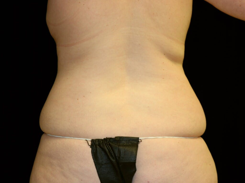 Tummy Tuck Gallery - Patient 39226183 - Image 7