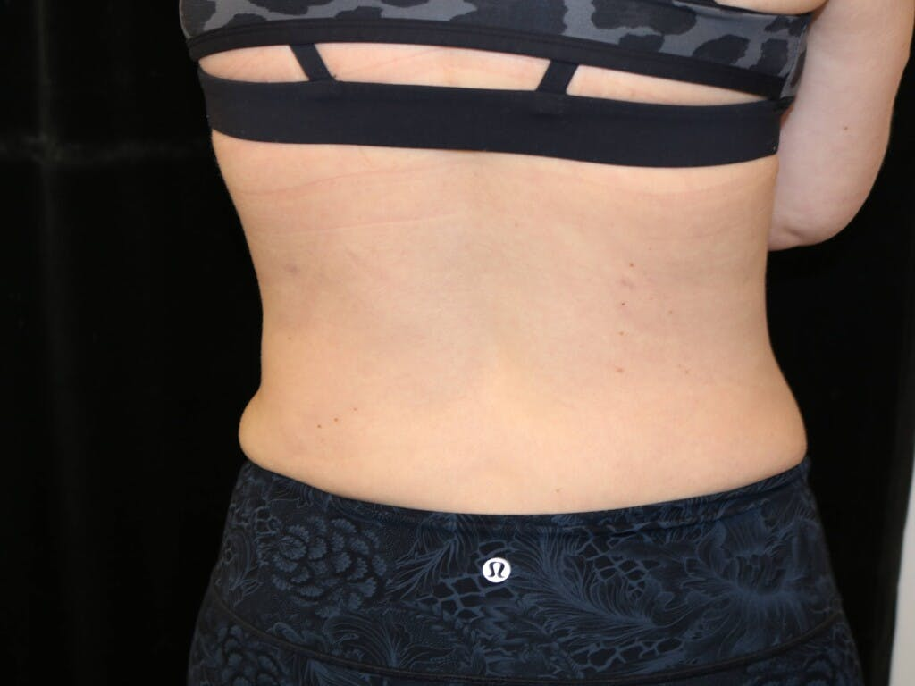 Tummy Tuck Gallery - Patient 39226183 - Image 8