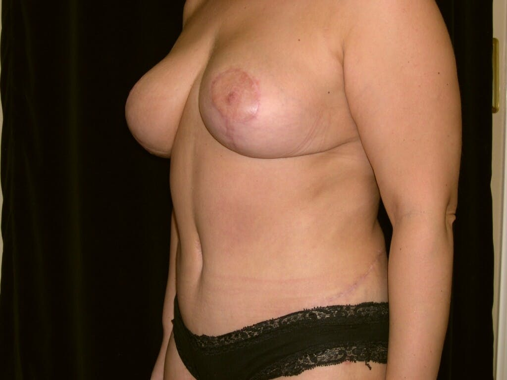 Mommy Makeover Gallery - Patient 39226185 - Image 6